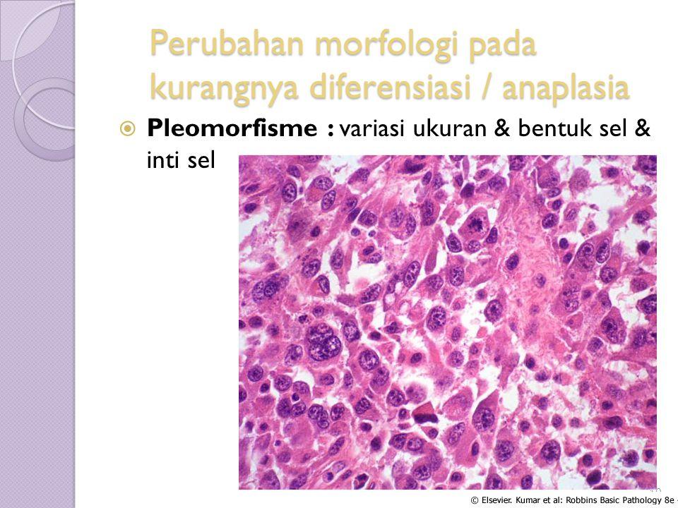 Perubahan morfologi pada kurangnya diferensiasi / anaplasia  Pleomorfisme : variasi ukuran & bentuk sel & inti sel Blok 2.1 Tahun 2012/2013 10