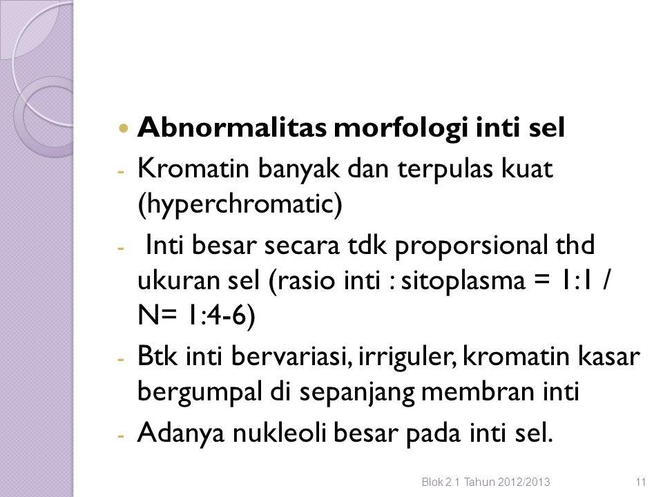 Abnormalitas morfologi inti sel - Kromatin banyak dan terpulas kuat (hyperchromatic) - Inti besar secara tdk proporsional thd ukuran sel (rasio inti :