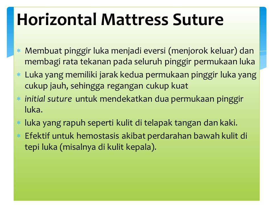 Horizontal Mattress Suture  Membuat pinggir luka menjadi eversi (menjorok keluar) dan membagi rata tekanan pada seluruh pinggir permukaan luka  Luka