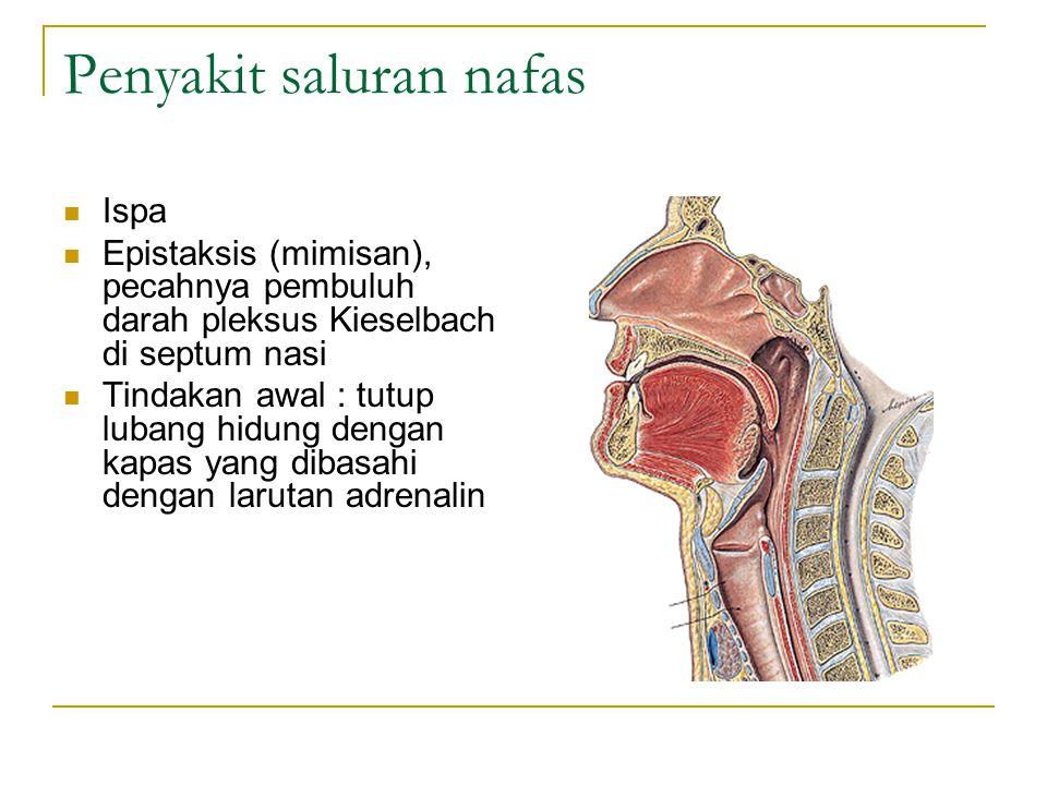 Penyakit saluran nafas Ispa Epistaksis (mimisan), pecahnya pembuluh darah pleksus Kieselbach di septum nasi Tindakan awal : tutup lubang hidung dengan kapas yang dibasahi dengan larutan adrenalin