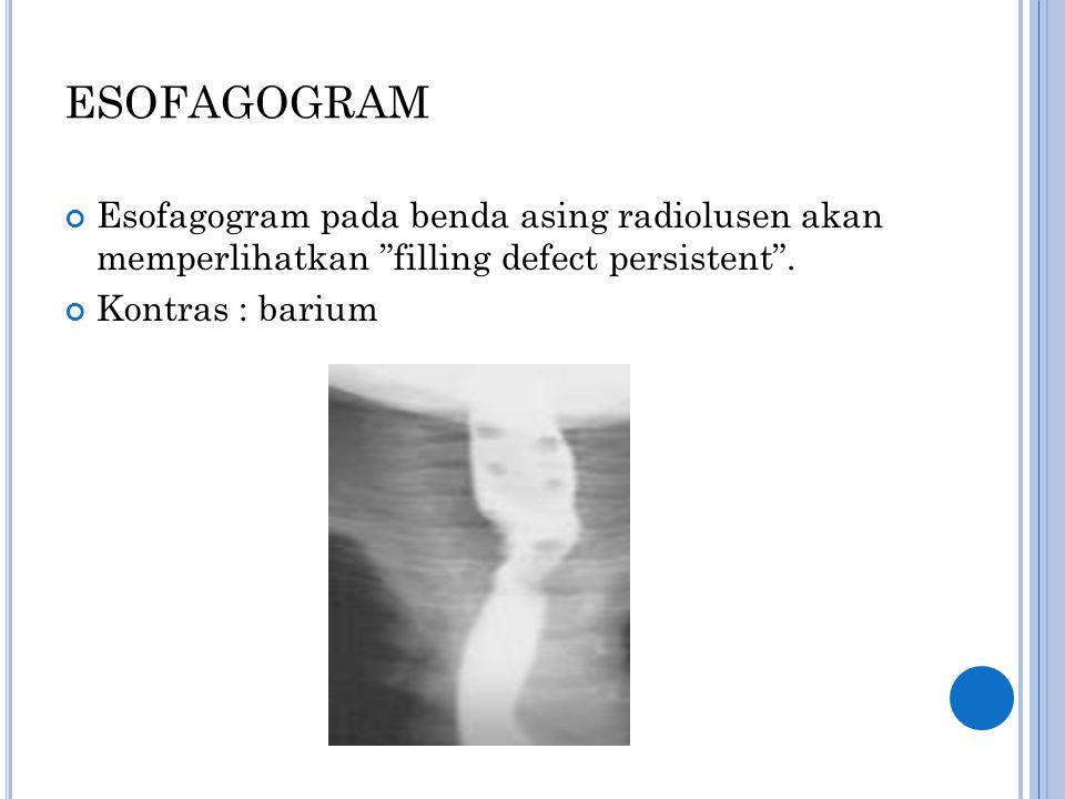 """ESOFAGOGRAM Esofagogram pada benda asing radiolusen akan memperlihatkan """"filling defect persistent"""". Kontras : barium"""