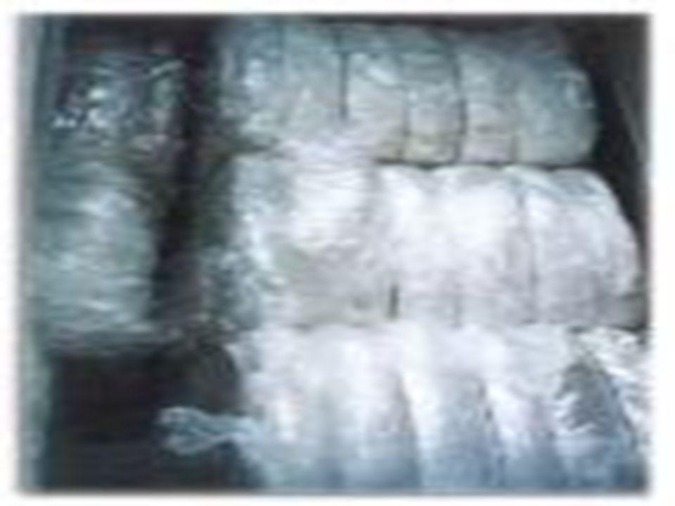 Produksi Bijih Plastik 1.Sortir merupakan proses pemisahan yang pertama kali dilakukan. Pada proses ini dilakukan pekerjaan untuk memisahkan bahan bak