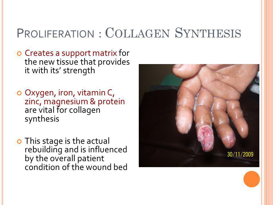 P ROLIFERATION : C OLLAGEN S YNTHESIS Creates a support matrix for the new tissue that provides it with its' strength Oxygen, iron, vitamin C, zinc, magnesium & protein are vital for collagen synthesis This stage is the actual rebuilding and is influenced by the overall patient condition of the wound bed