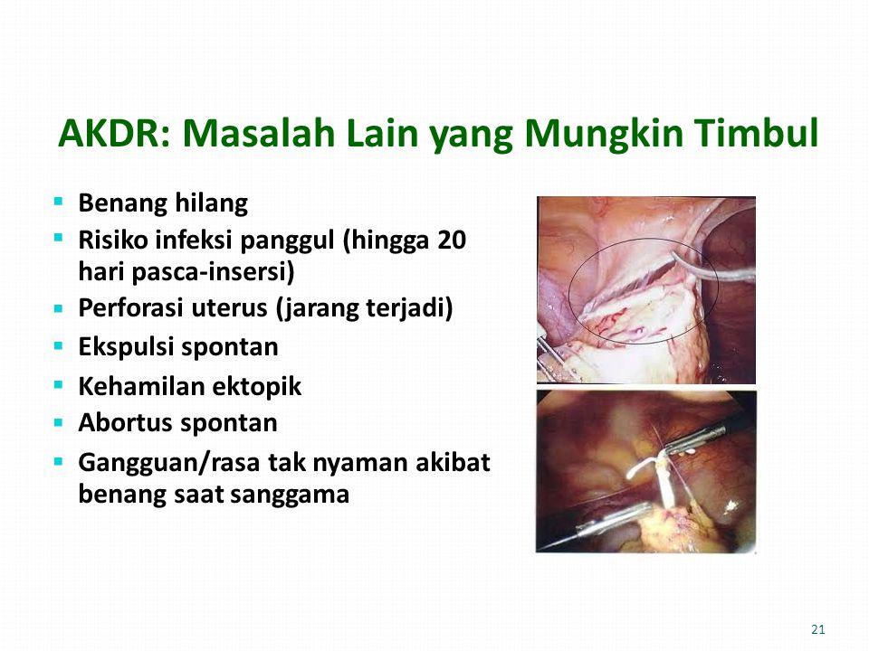 AKDR: Masalah Lain yangMungkinTimbul  Benang hilang Risiko infeksi panggul (hingga 20 hari pasca-insersi) Perforasi uterus (jarang terjadi) Ekspulsi spontan Kehamilan ektopik Abortus spontan Gangguan/rasa tak nyaman akibat benang saat sanggama  21