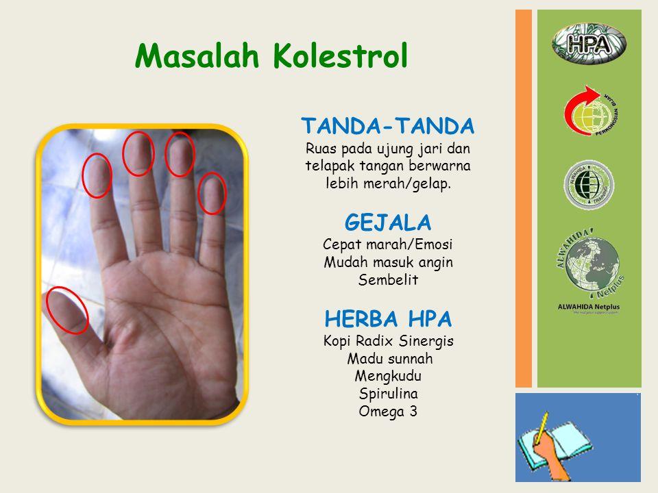 Masalah Kolestrol TANDA-TANDA Ruas pada ujung jari dan telapak tangan berwarna lebih merah/gelap. GEJALA Cepat marah/Emosi Mudah masuk angin Sembelit