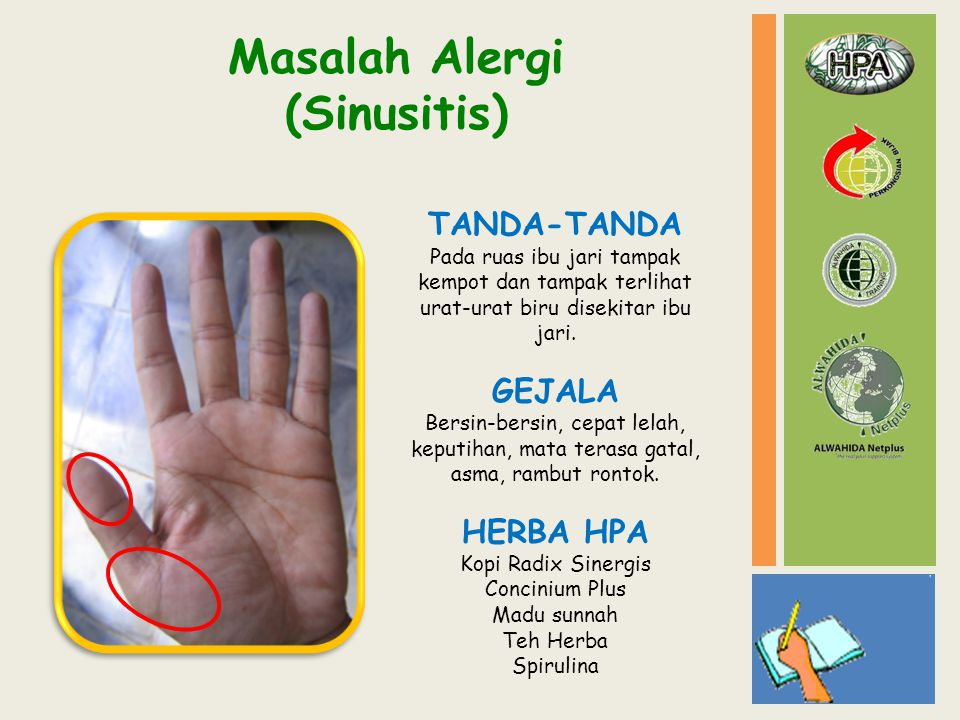 Masalah Alergi (Sinusitis) TANDA-TANDA Pada ruas ibu jari tampak kempot dan tampak terlihat urat-urat biru disekitar ibu jari. GEJALA Bersin-bersin, c