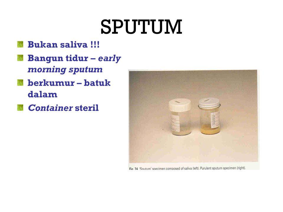 SPUTUM Bukan saliva !!! Bangun tidur – early morning sputum berkumur – batuk dalam Container steril