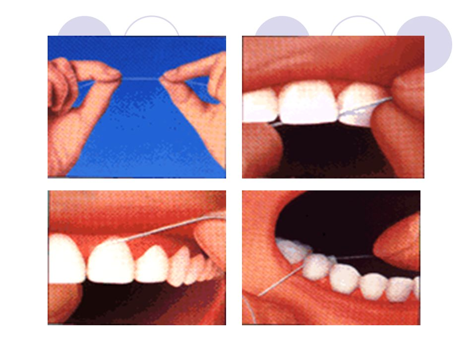 23 Pemberian Fluoride  untuk memperkuat gigi. Pasta   Obat Kumur   tablet f14f0d51e2