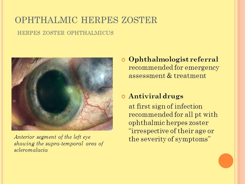 Herpes Zoster And Post Herpetic Neuralgia Dr Semuel A Wagiu Sps Siang Klinik Rsud Dr M Haulussy Ambon 13 Pebruari Ppt Download